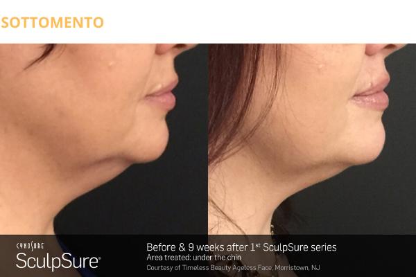 Sottomento prima e dopo 1 seduta SculpSure